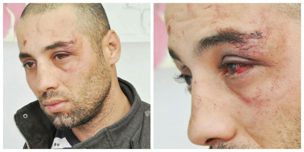 Said Zared un citoyen de Mekla interpellé sans motif et passé à tabac par la police - K-DIRECT